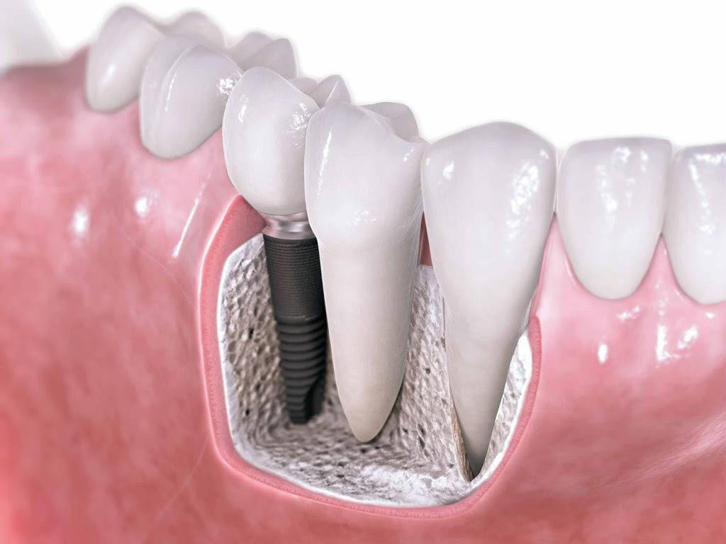 Análise fotoelástica da distribuição de tensões em implantes osseointegráveis com diferentes desenhos.