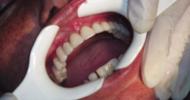 Aplicación de Implante Kopp en Paciente Medicado con Biofosfonato.