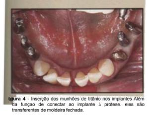 implantes de conexão sem parafuso