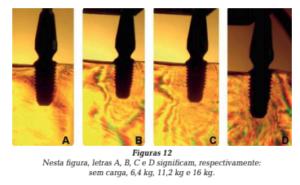 formatos das roscas dos implantes