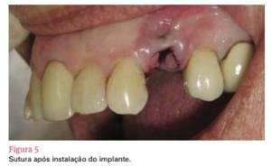 sistema de implante friccional