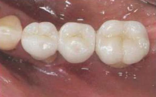 Coroas Cimentadas em Implantes de Conexão sem Parafuso.
