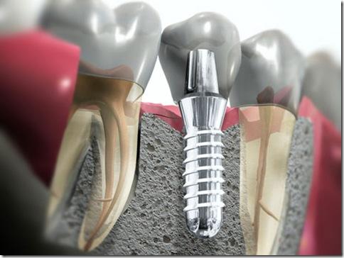 Influência do Formato das Roscas dos Implantes na Distribuição de Tensões no Tecido Ósseo- Análise Fotoelástica.