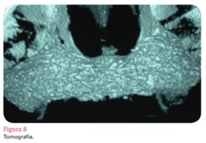 enxerto ósseo homólogo particulado modificada