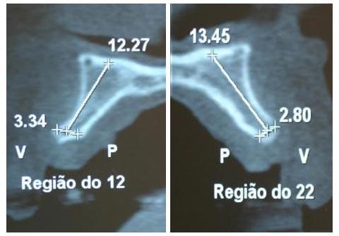 tomografia cone-beam