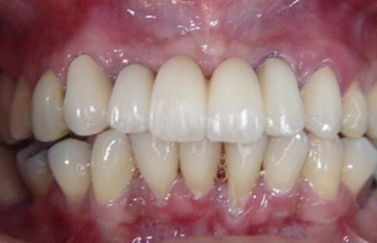 próteses fixas sobre implante região de 12 ao 22